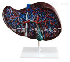 肝解剖模型