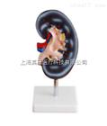 肾解剖模型1件