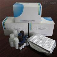 人抗EB病毒抗体(EBV)检测试剂盒保存
