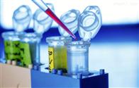 猪Ⅰ型前胶原羧基端肽PⅠCP试剂盒